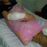Fadi Abu-A'sr střelený ostrou kulkou do předloktí (foto: palsolidarity.org)